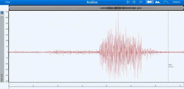 Sinal eletromiográfico (EMG): entenda o que é