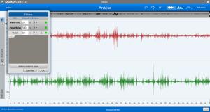 filtros no exame de Eletromiografia