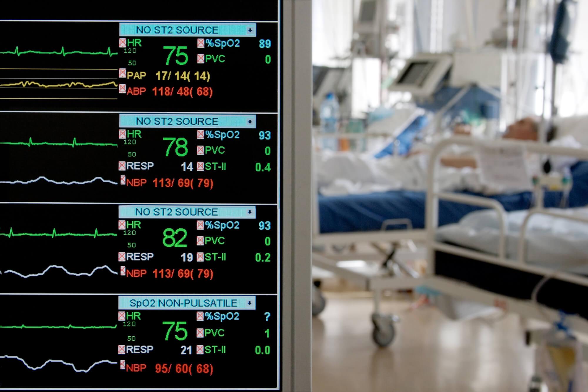 Eletromiografia de superfície: nova forma de avaliação de pacientes em UTI