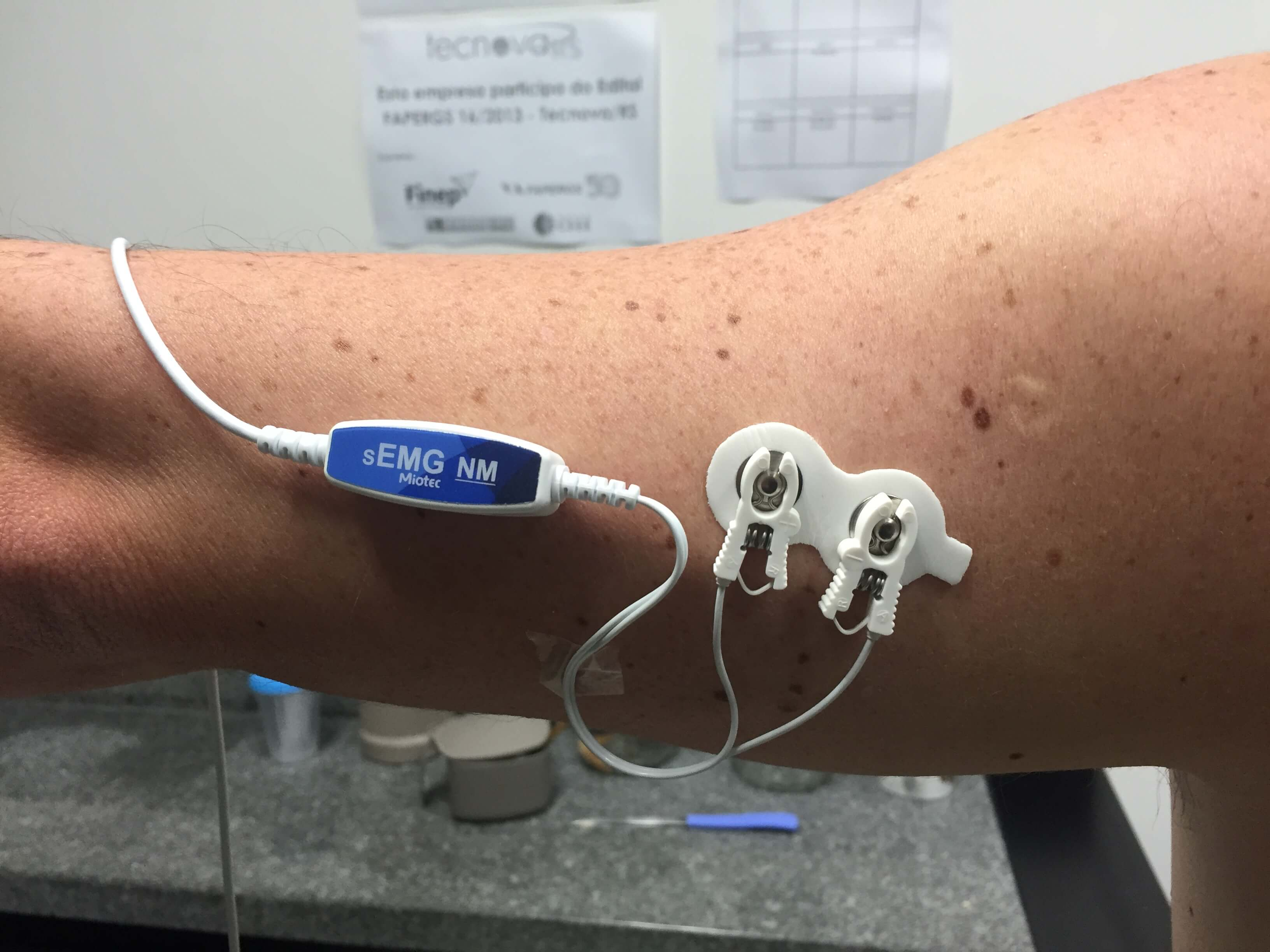 Entenda como a tecnologia auxilia na análise muscular