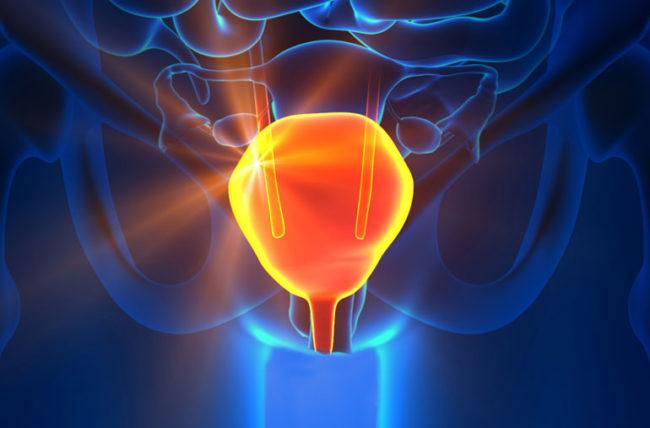 Entenda a importância do uso do urofluxômetro no tratamento de incontinência urinária